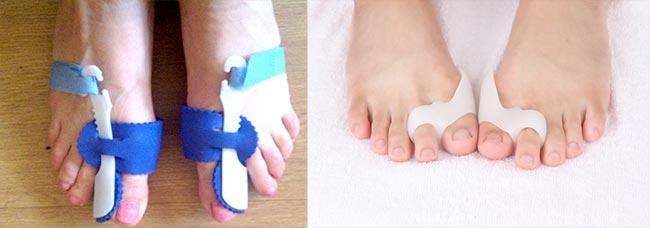 Что такое косточка на большом пальце ноги