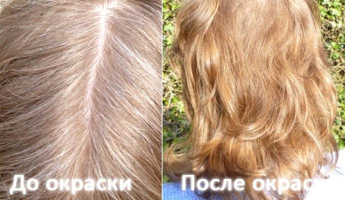Выпадают волосы при расчёсывании у ребёнка
