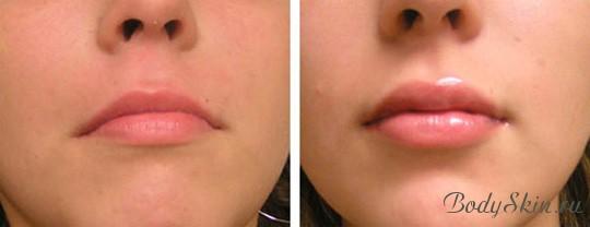 Как сделать губы пухлее на фото 686