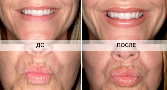 Перед увеличением губ нельзя пить