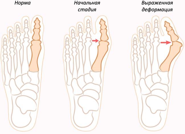 Косточка на большом пальце ноги лечение в домашних условиях