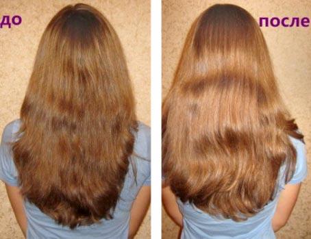 Почему от перхоти выпадают волосы