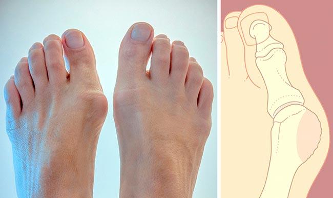 Шишка на суставе пальца ноги